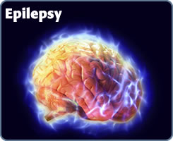 Help and assistance for people with Epilepsy obtain Life Insurance