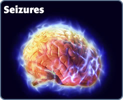 Help and assistance for people with Seizures obtain Life Insurance